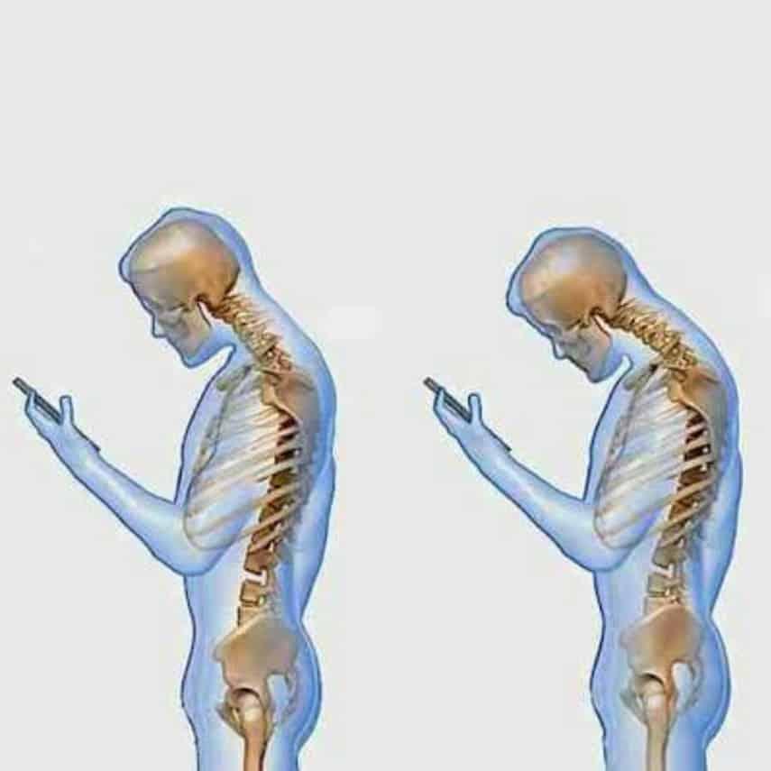 """alt=""""Cuidado! Seu smartphone está destruindo sua coluna e seu humor"""""""