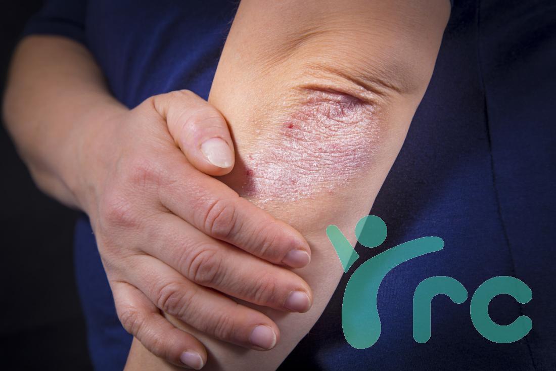 artrite psoriásica