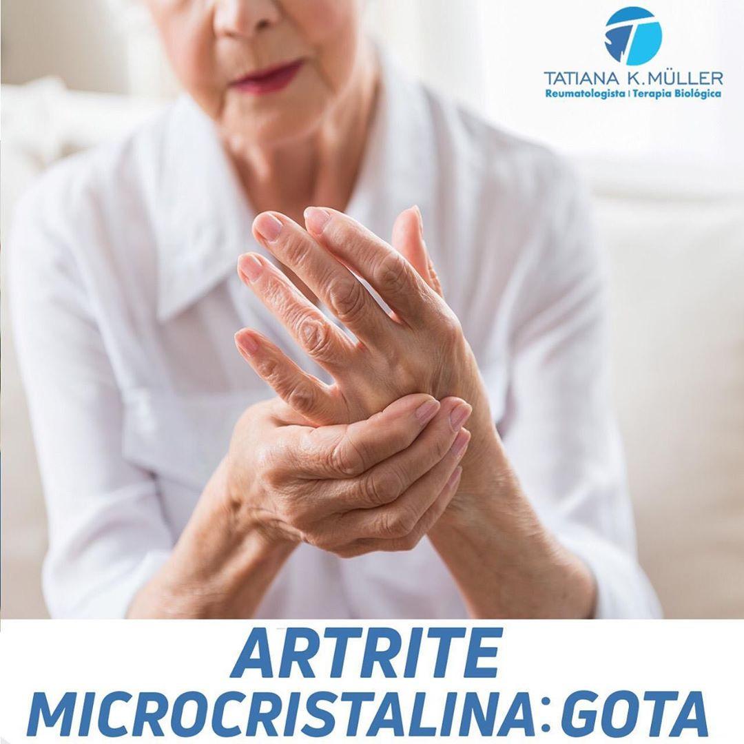 artrite microcristalina