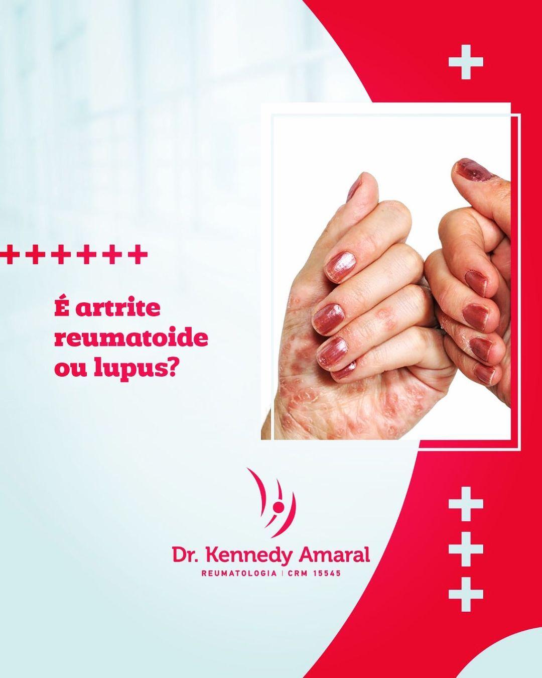É artrite reumatoide ou lúpus